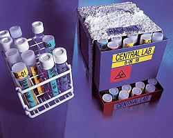 Tiskárna štítků BROTHER PT-D450VP